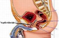 Khi nào nên phẫu thuật tăng sinh lành tính tuyến tiền liệt?