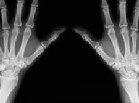 Bước tiến mới trong điều trị tái tạo xương