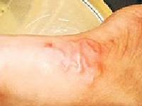 Các triệu chứng khi nhiễm ký sinh trùng
