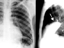 Cách thở trong bệnh phổi tắc nghẽn mạn tính