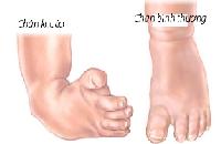 Trẻ sơ sinh bị khoèo chân, cần làm gì?